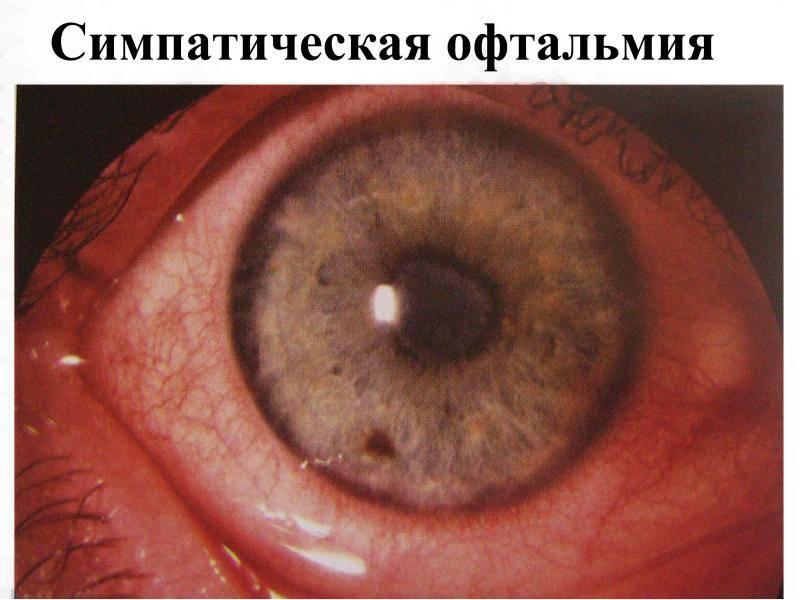Эндофтальмит: симптомы, лечение, фото