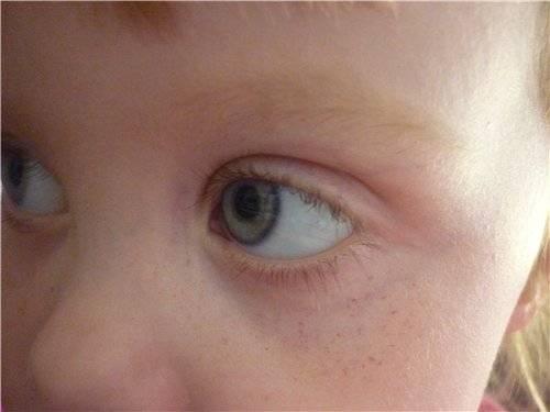 Что делать маме, если лопнул сосуд в глазу у ребенка?