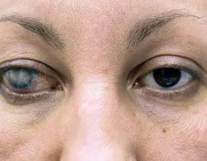Почему появляется и как лечится бельмо на глазу: методики лечения