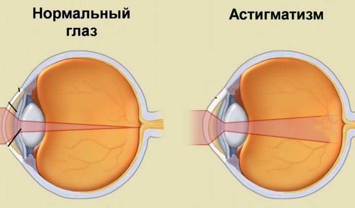 Рефракция глаза - что это такое, диагностика и лечение нарушения