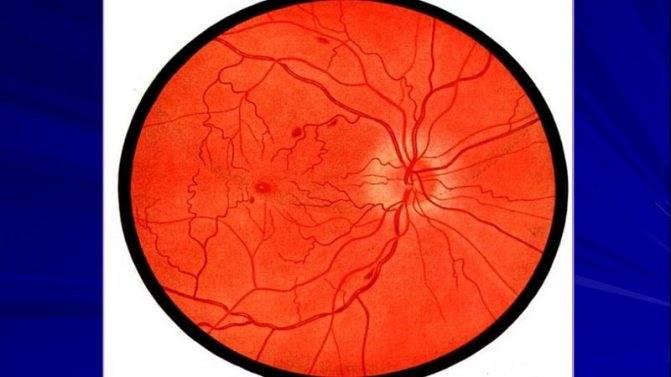 Гипертонический ангиосклероз сетчатки глаз - стоит ли беспокоиться?