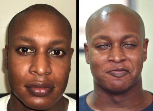 Операция по изменению цвета глаз лазером и имплантатами, цена