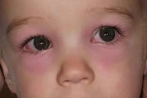 Причины и лечение красноты под глазами у ребёнка