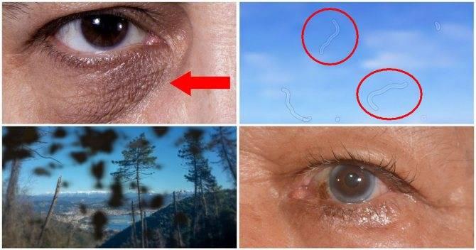 Стеклянный глаз. почему глаза становятся стеклянными? почему у бабушки стали стеклянные глаза