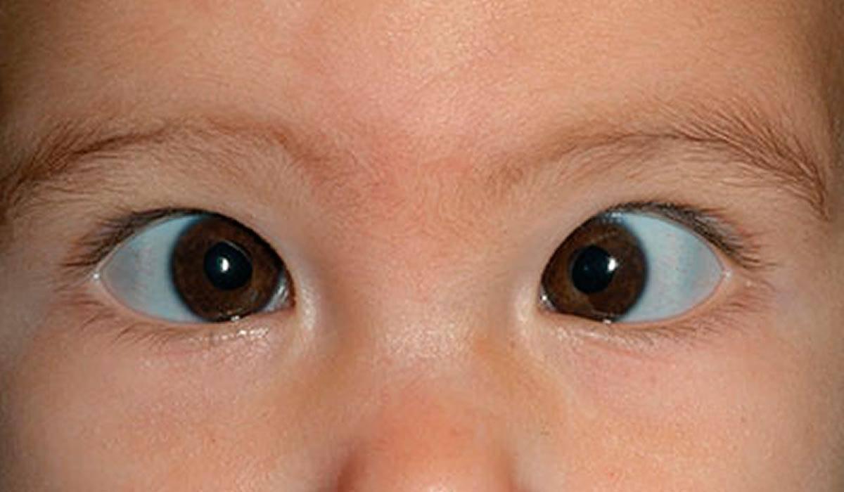 Расходящееся косоглазие у детей: причины и лечение