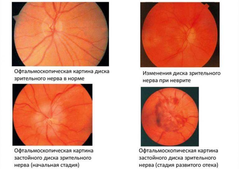 Особенности лечения застойного диска зрительного нерва
