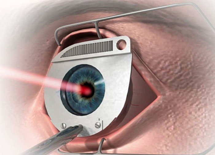 Ограничения после проведения лазерной коррекции зрения