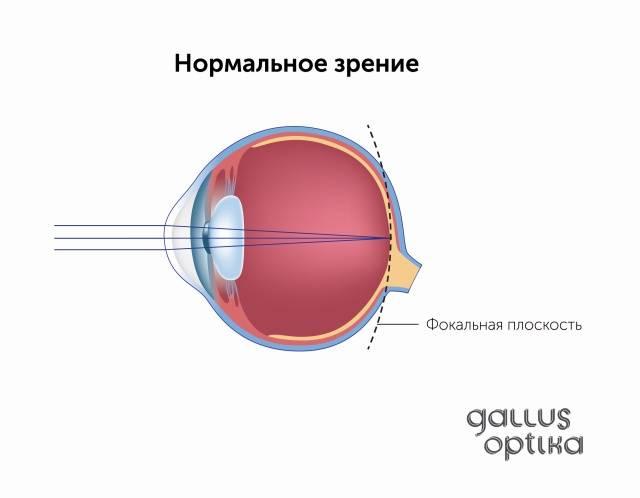 """Как развить боковое зрение: отличия у мужчин и женщин, диагностика - """"здоровое око"""""""