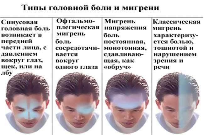 Почему болит голова в области лба и давит на глаза, причины