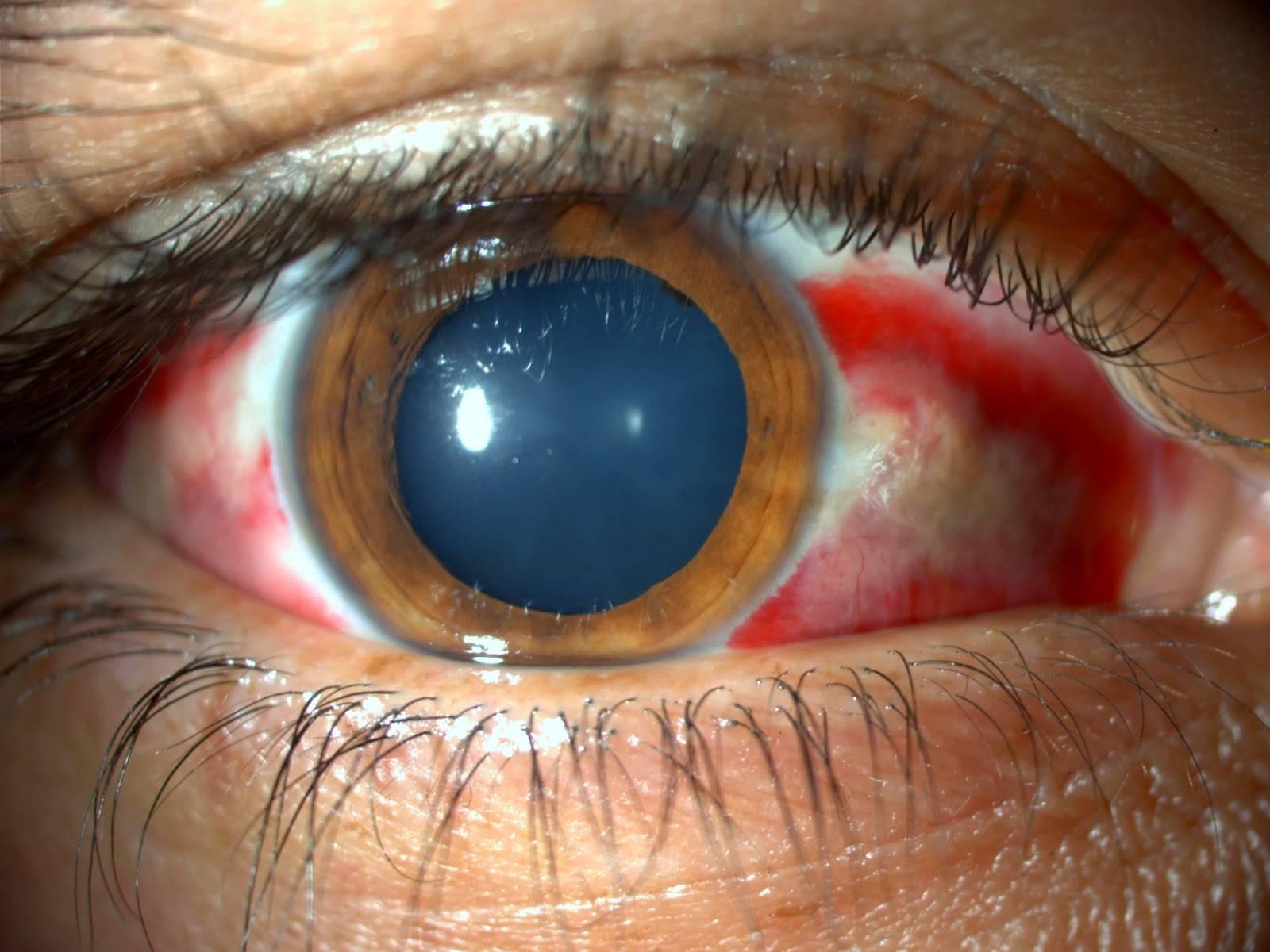 Гнойный эндофтальмит: причины, лечение, прогноз — онлайн-диагностика