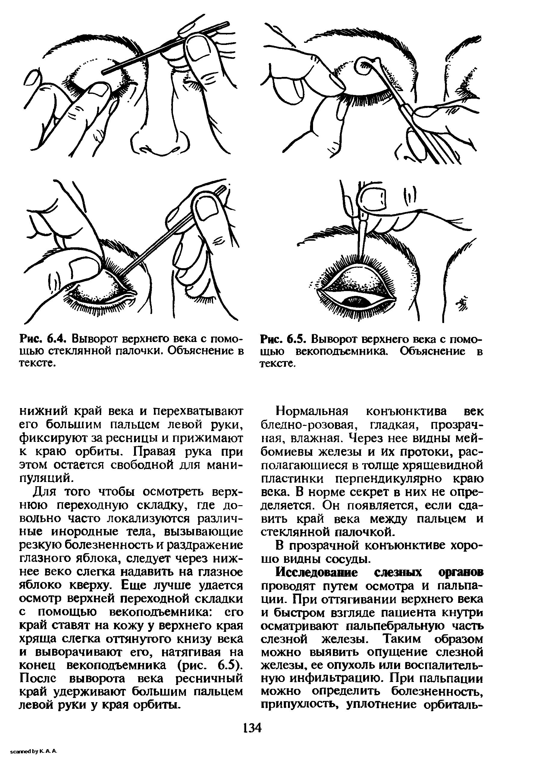 Как вывернуть глазное веко. выворот нижнего и верхнего века (эктропион глаза): исправление и лечение