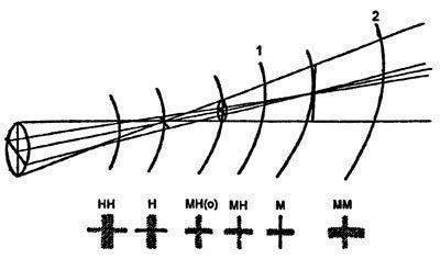 Узнаем как происходит подбор и пересчет астигматических линз?