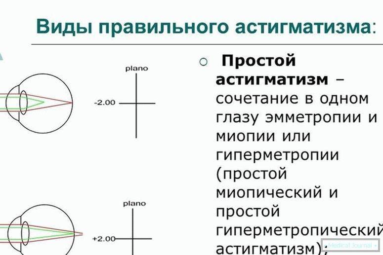 Миопический астигматизм — простой и сложный