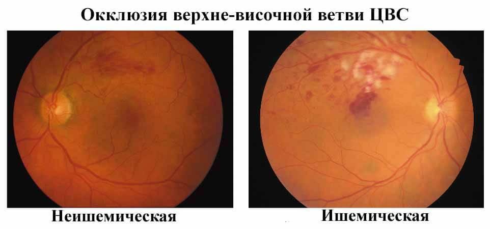 Тромбоз сетчатки глаза: причины, симптомы, лечение, восстановительный период и советы офтальмолога - sammedic.ru