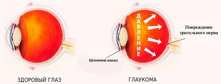 Какие есть степени глаукомы
