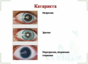 Незрелая катаракта: симптомы и лечение. нужна ли операция?