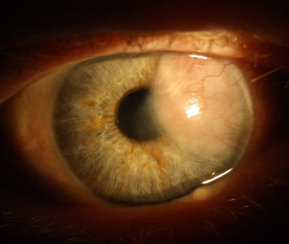 Вспышки в глазах, причины возникновения, диагностика и лечение