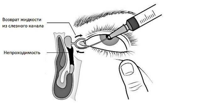 Ззондирование слезного канала у новорожденных - как делают