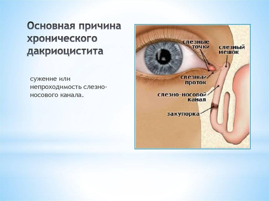 Дакриоаденит: код по мкб, как выглядит на фото, первые признаки, как развивается, диагностика и лечение воспаления слезной железы, прогноз и профилактика заболевания