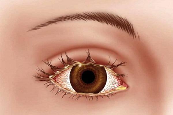 Блефарит глаз: фото, симптомы, лечение у взрослых и детей