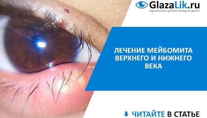 Мейбомит века — причины, симптомы и лечение (фото)