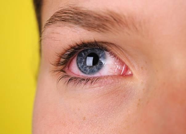 Что сделать чтобы глаза были красные