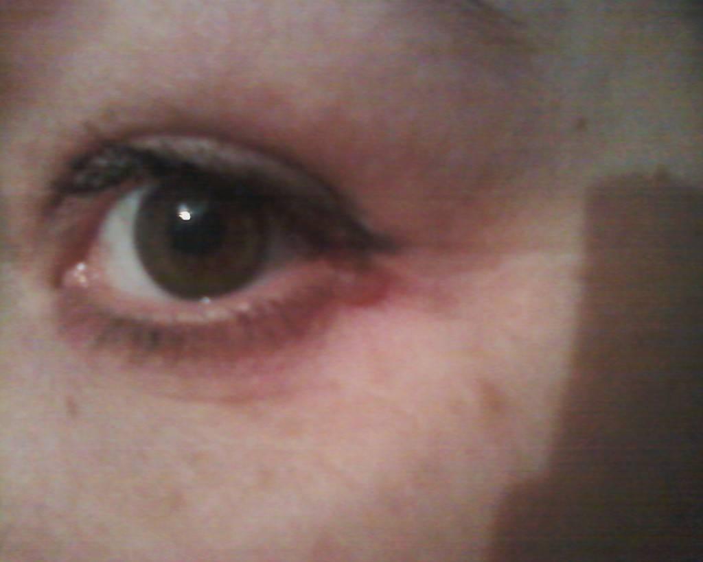 Болит уголок глаза ближе к носу, возле переносицы (внутренний или внешний): симптомы, причины, лечение боли, профилактика
