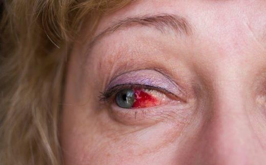 Контузия глаза   компетентно о здоровье на ilive