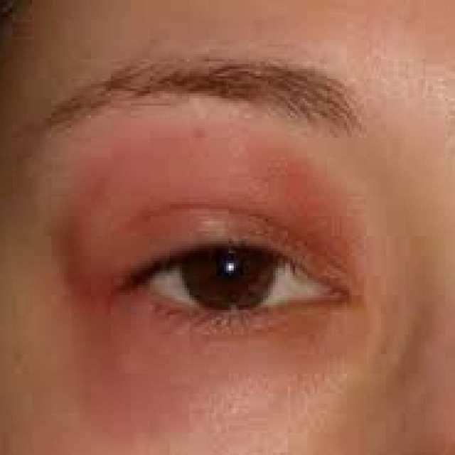 Отеки при аллергии - в чем опасность? и что делать?