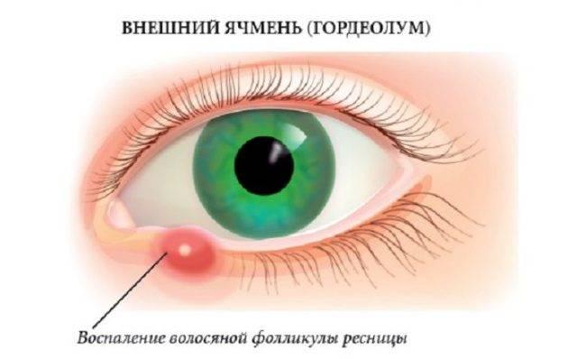 Наружный ячмень (hordeolum externum), лечение, причины, симптомы,  профилактика.