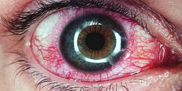 Симптомы и лечение герпеса на глазу