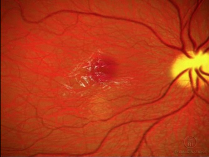 Эпиретинальный фиброз глаза лечение народными средствами - медицинская профилактика