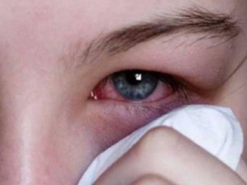Что делать, если мыло или шампунь попали в глаза? первая помощь и лечение