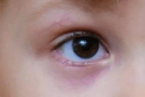 Мазь для ушибов и синяков детей (гематом): чем помазать, средство, крем, у ребенка чем лечить, грудничка
