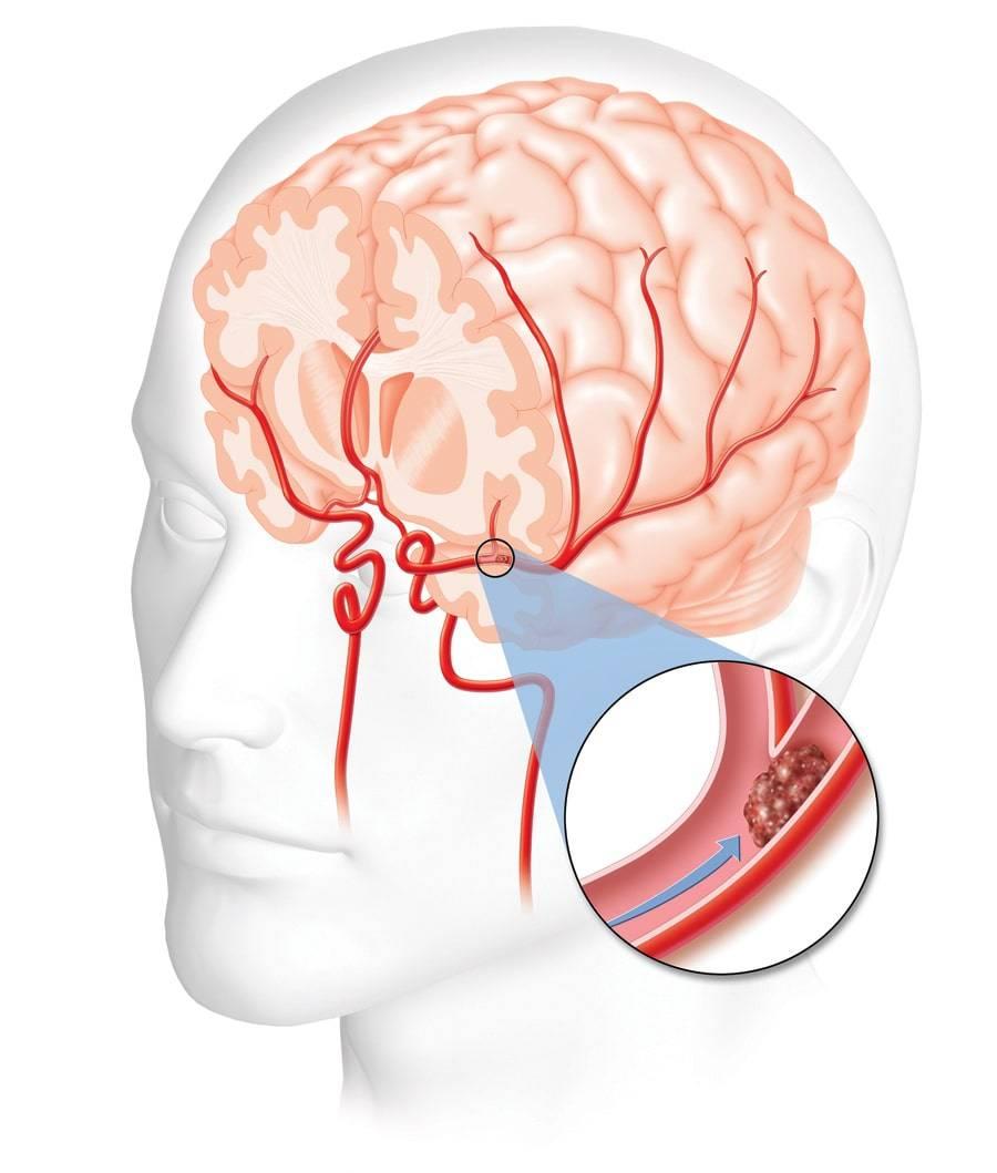 Восстановление зрения после инсульта — причины нарушений, выпадение полей, методы и способы лечения