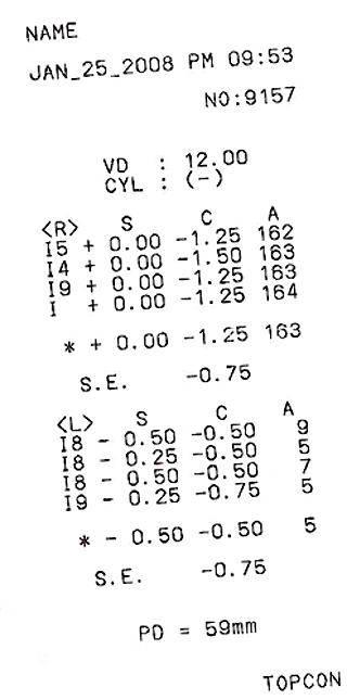 Авторефрактометрия – что это такое? методика исследования, показания, расшифровка результата, цена – клиника новый взгляд