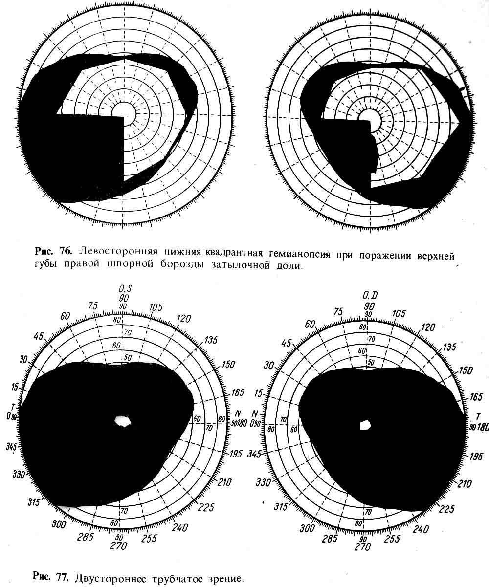 Как исследуют поле зрения