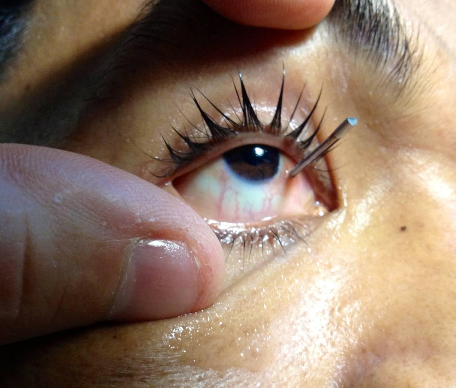 Царапина на роговице глаза