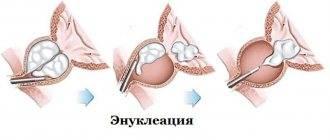 Эвисцерация глазного яблока, когда и кому надо делать