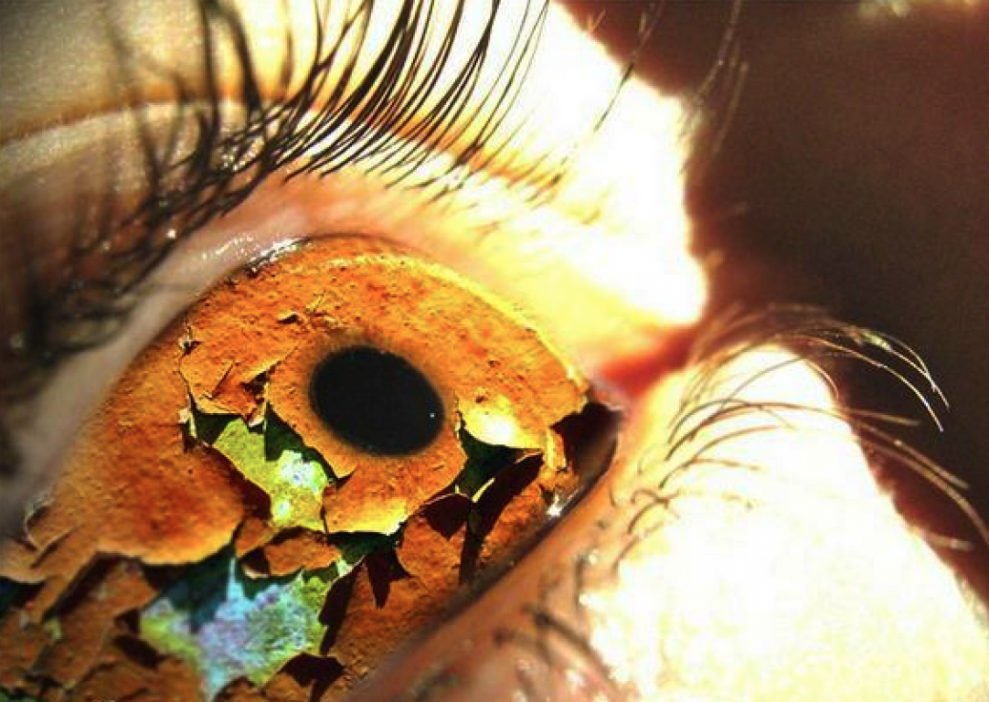 Самостоятельное лечение сухого глаза народными средствами | | управление судьбой