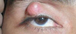 После ячменя осталась шишка на веке что делать - лечение глаз