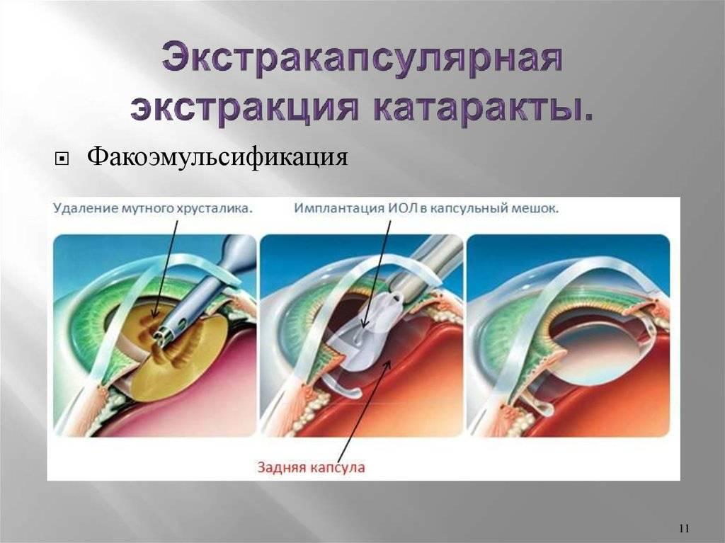 Экстракция катаракты: что это, отличия интракапсулярной и экстракапсулярной операции на хрусталике, что такое имплантация иол