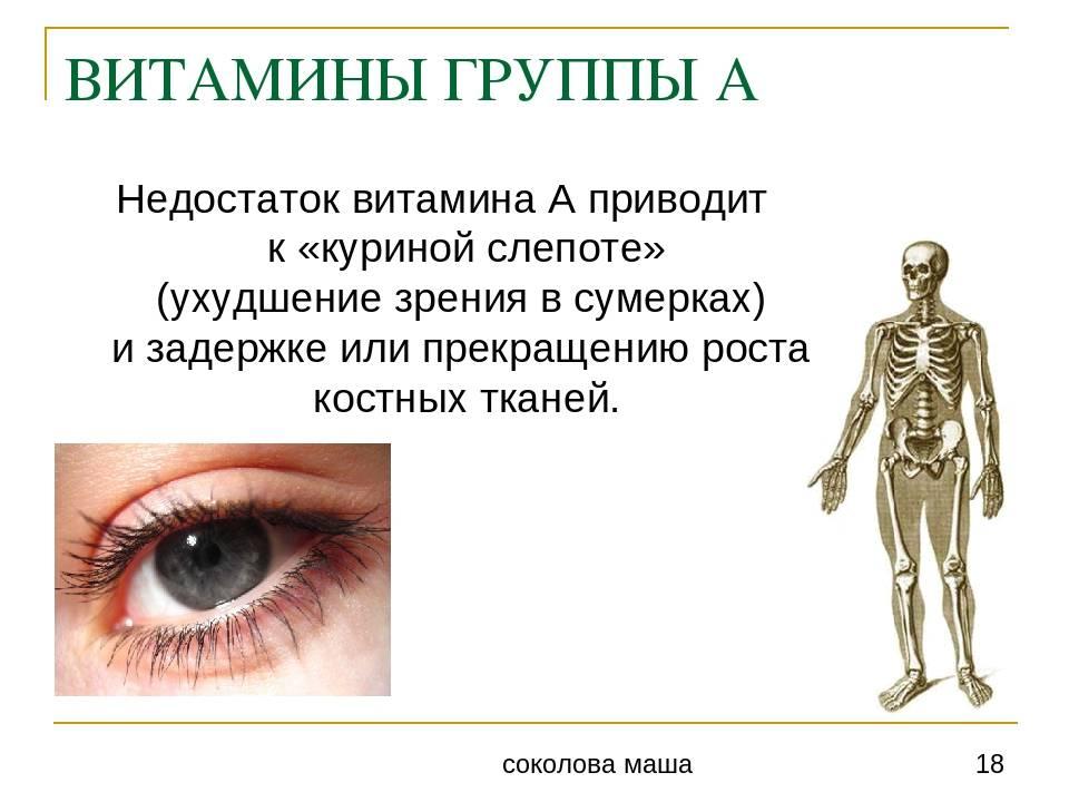 Гемералопия или куриная слепота: лечение, причины, симптомы