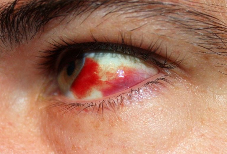 Очень пекут глаза что делать. чайные примочки и промывания. почему щиплет глаза, причины и лечение симптома
