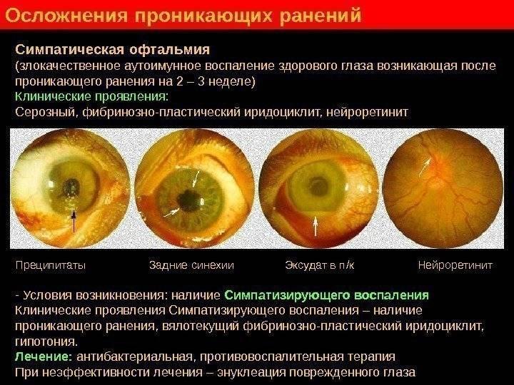 Причины и симптомы симпатической офтальмии и способы лечения