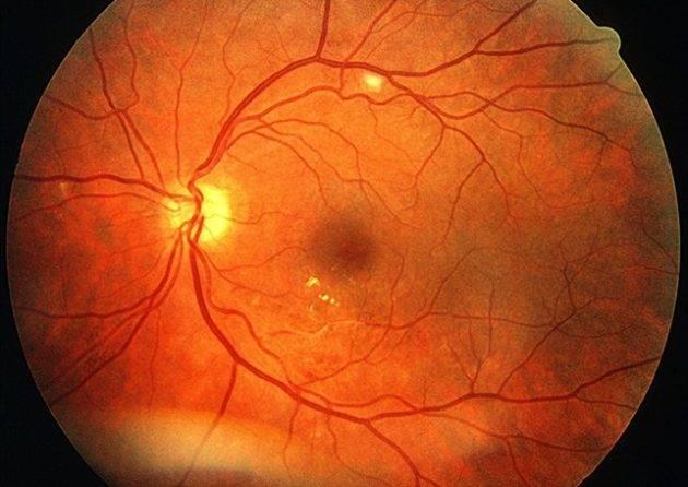 Ретинит глаза: что это такое, симптомы и лечение
