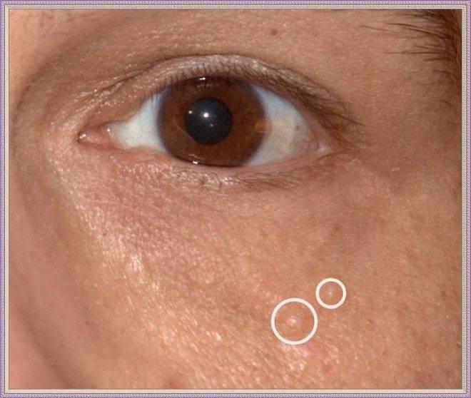 На веках глаз белые жировики: причины появления и эффективные методы лечения