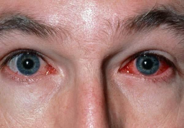 Эписклерит – причины заболевания и способы лечения