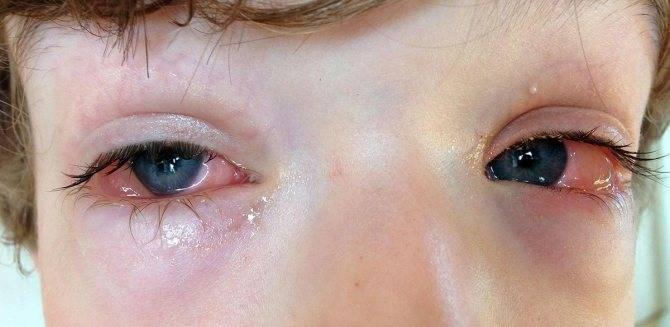 Гноятся глаза у взрослого: чем лечить и что делать в домашних условиях, препараты и народные средства, причины и симптомы выделения гноя
