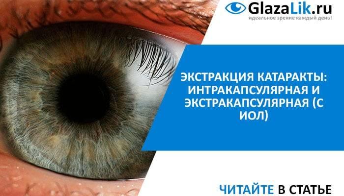 Показания к экстракции катаракты - медицинский справочник medana-st.ru